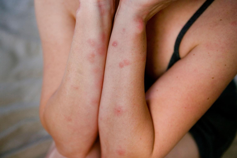 Allergia cutanea